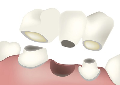Bridge diagram image at Optimum Oral Surgery Group
