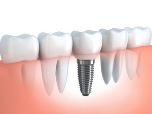 Dental Implant diagram at Optimum Oral Surgery Group