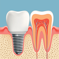 Implant diagram at Optimum Oral Surgery Group in New Jersey