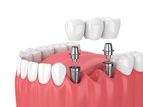 Diagram of three missing teeth replaced by implant supported dental bridge